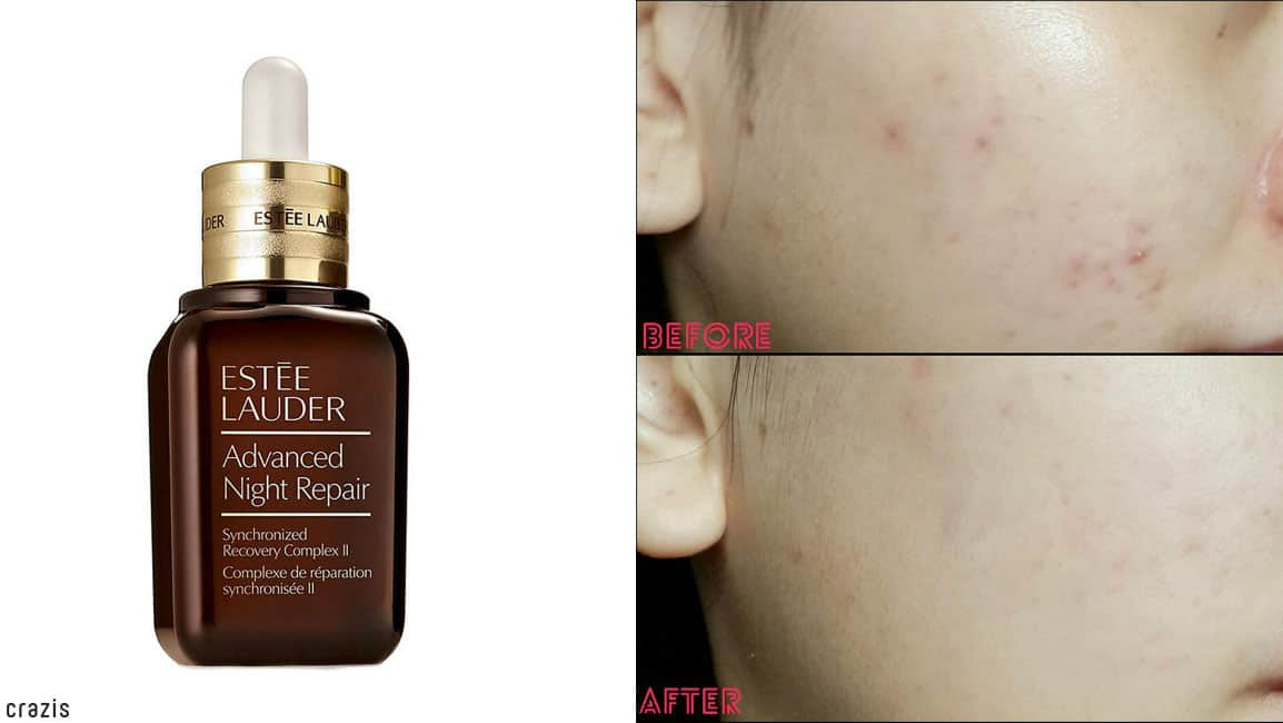 Serum chống lão hóa Estée Lauder Advanced Night Repair Synchronized Recovery Complex II