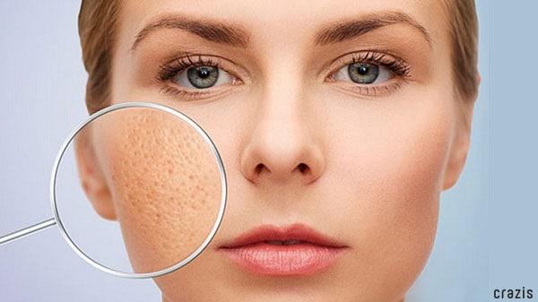 Lỗ chân lông bị bít tắc nếu không tẩy tế bào chết cho da mặt