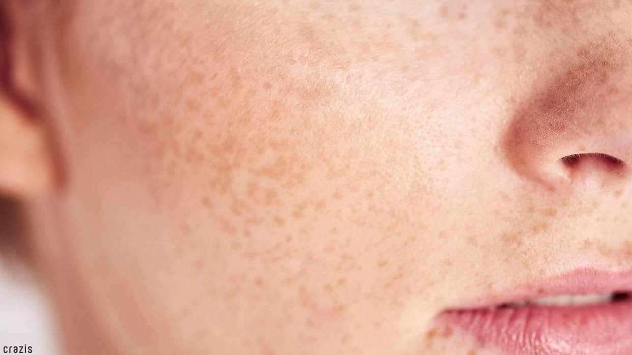 serum tái tạo da