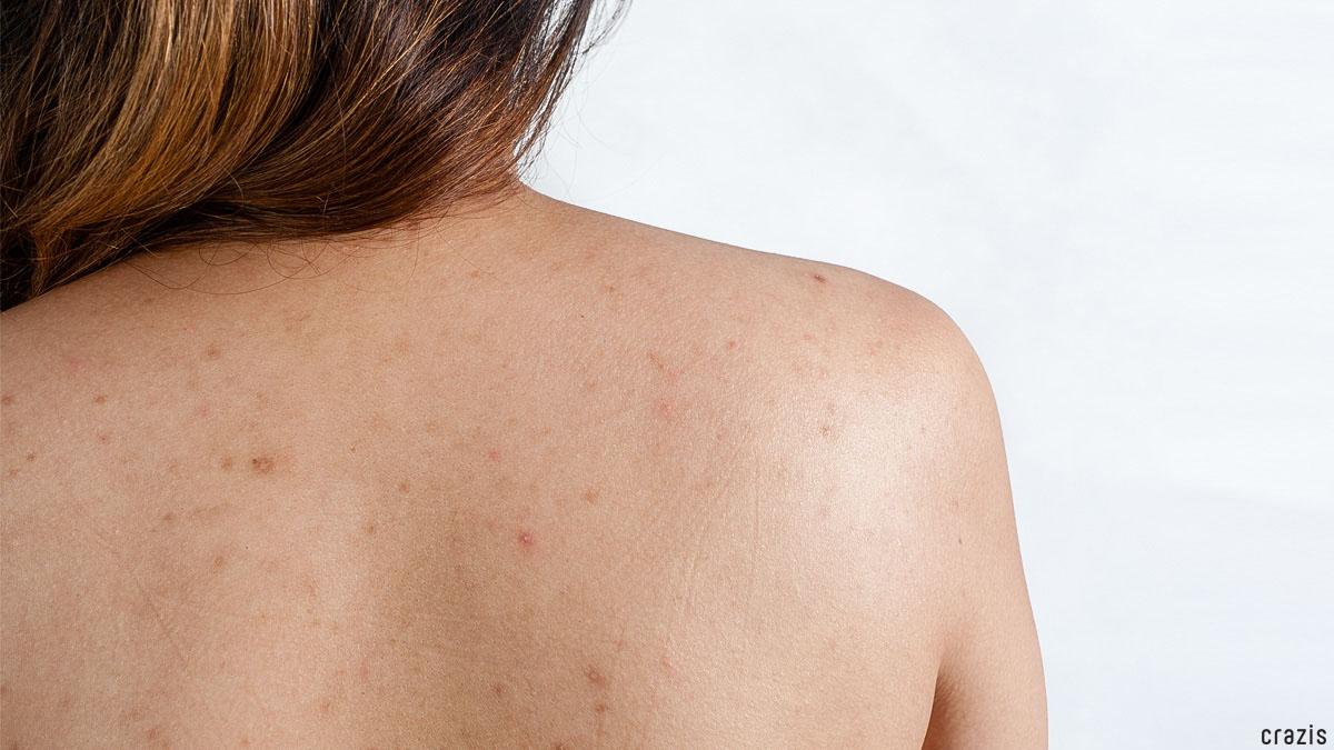 Tẩy tế bào chết body giúp giảm mụn và viêm lỗ chân lông