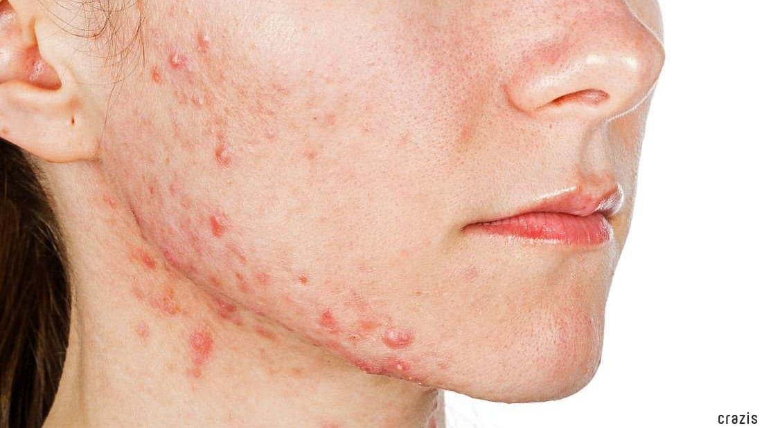 Tẩy tế bào chết cho da mặt có mụn