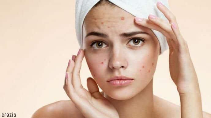 tẩy tế bào chết cho da mặt giúp hạn chế hình thành mụn