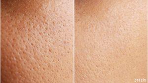 Toner hỗ trợ tối đa tình trạng viêm lỗ chân lông
