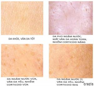 Cách nhận biết da bị nhiễm coritcoid từ kem trộn